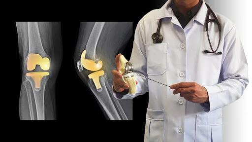 Como é a recuperação da cirurgia de prótese de joelho?