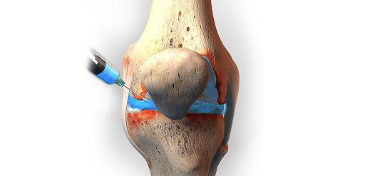 O que é uma infiltração no joelho?