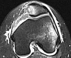 ligamento femoropatelar medial - luxação da patela