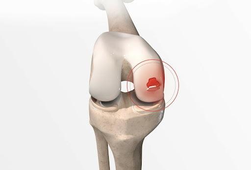 Descubra quais são as funções da cartilagem
