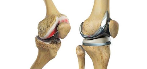 O que é prótese total de joelho?