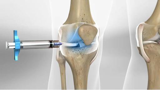 Quais são os benefícios da viscossuplementação no joelho?